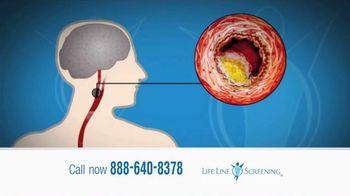 Life Line Screening TV Spot, 'Screenings for Cardiovascular Diseases'