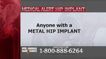 Dyer, Garofalo, Mann & Schultz TV Spot, 'Hip Implant' - Thumbnail 1
