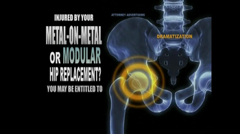 Weitz and Luxenberg TV Spot, 'Metal-on-Metal Hip Replacement' - Thumbnail 6