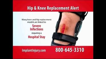 Gold Shield Group TV Spot, 'Hip & Knee Replacement Alert' - Thumbnail 4