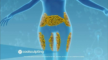 Zeltiq Aesthetics CoolSculpting TV Spot, 'See a Slimmer You' - Thumbnail 4