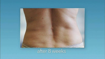 Zeltiq Aesthetics CoolSculpting TV Spot, 'See a Slimmer You' - Thumbnail 6