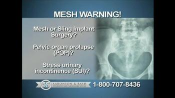 Aaronson and Rash TV Spot, 'Mesh Warning' - Thumbnail 2