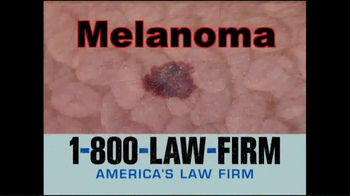 1-800-LAW-FIRM TV Spot, 'Melanoma'