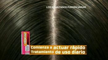 Medicasp TV Spot, 'Gorros' [Spanish] - Thumbnail 6