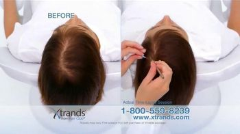A Revolutionary Way to New Hair thumbnail