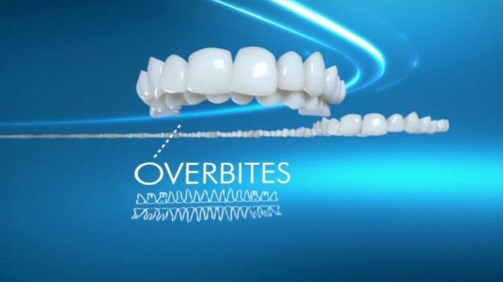 Invisalign TV Commercial, 'Broad Range of Dental Issues'
