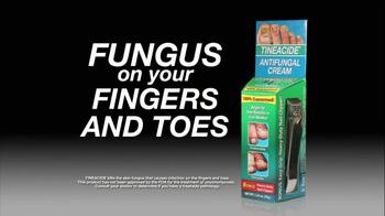 Tineacide Anti Fungal Cream TV Spot - Thumbnail 1