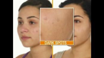 Proactiv TV Spot for Dark Spot Corrector Featuring Naya Rivera - Thumbnail 2