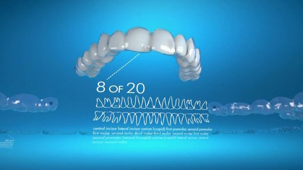 Invisalign TV Commercial, 'Gradually Straighten Your Teeth'