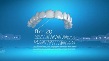Invisalign TV Spot, 'Gradually Straighten Your Teeth'
