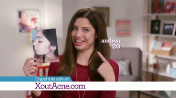 X Out TV Spot, '¿Te Frustra el Acné?' [Spanish] - Thumbnail 5