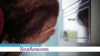 X Out TV Spot, '¿Te Frustra el Acné?' [Spanish] - Thumbnail 6