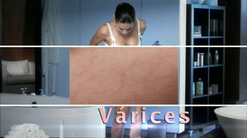 Goicoechea TV Spot, 'Várices' [Spanish] - Thumbnail 1