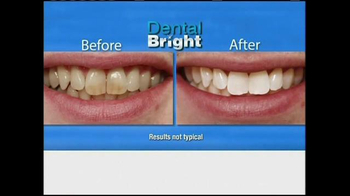 Dental Bright TV Spot - Thumbnail 5