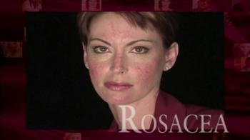 Prosacea TV Spot - Thumbnail 3