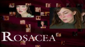 Prosacea TV Spot - Thumbnail 5
