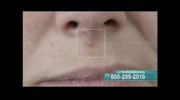 No! No! Skin TV Spot - Thumbnail 3