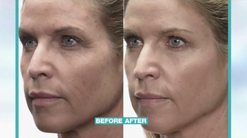 MD Complete Anti-Aging Kit TV Spot, 'The Results Are In' - Thumbnail 10