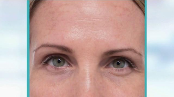 MD Complete Anti-Aging Kit TV Spot, 'The Results Are In' - Thumbnail 6