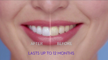 Crest 3D Whitestrips Luxe TV Spot - Thumbnail 9