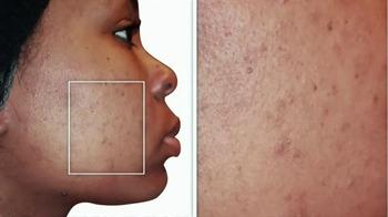 Proactiv+ Blackhead Dissolving Gel TV Spot, 'Purify Your Pores' - Thumbnail 1