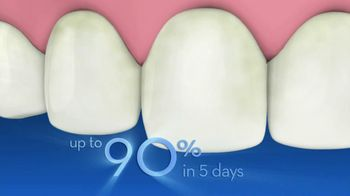 Crest Glamorous 3D Whitening Toothpaste TV Spot, 'Ex Encounter' - Thumbnail 5