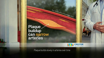 Crestor TV Spot, 'Plaque Buildup' - Thumbnail 4