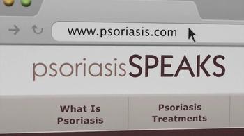 Psoriasis Speaks TV Spot, 'Uncomfortable' - Thumbnail 5