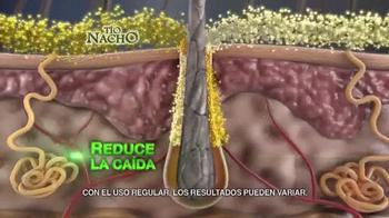 Tío Nacho Mexican Herbs TV Spot, 'Previene Quiebre' [Spanish] - Thumbnail 5