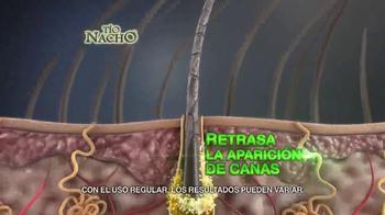Tío Nacho Mexican Herbs TV Spot, 'Previene Quiebre' [Spanish] - Thumbnail 6