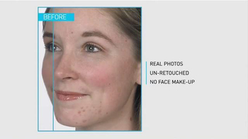 La Roche-Posay Effaclar TV Spot, 'Europe's Top Acne Treatment Brand' - Thumbnail 1