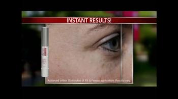Derm Exclusive Fill-n-Freeze TV Spot - Thumbnail 2