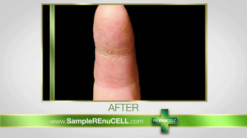 REnuCELL Restorative Healing Balm TV Spot - Thumbnail 7