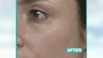 MD Complete Skincare TV Spot, 'Everyone is Talking About' - Thumbnail 1