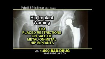 Pulaski & Middleman TV Spot, 'Hip Implant Warning' - Thumbnail 2