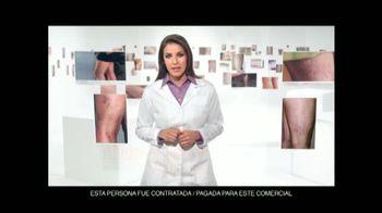 Goicoechea Várices TV Spot [Spanish]