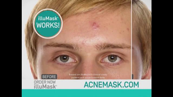 illuMask Acne Mask TV Spot, 'A Brand-New Way to Eliminate Acne' - Thumbnail 4