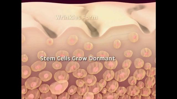 Biologic Solutions Stem Cell Therapy TV Spot, 'Eliminate Wrinkles' - Thumbnail 6