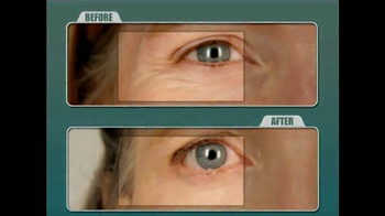 Biologic Solutions Stem Cell Therapy TV Spot, 'Eliminate Wrinkles' - Thumbnail 9