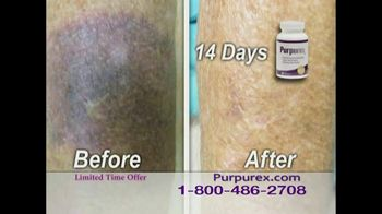 Purpurex TV Spot Featuring Florence Henderson - 1 commercial airings