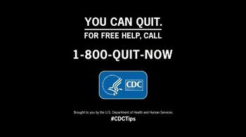 Center For Disease Control TV Spot, 'Brett' - Thumbnail 7