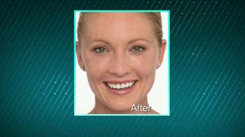 Proactiv+ TV Spot, 'Change Your Skin' Featuring Lily Aldridge - Thumbnail 2