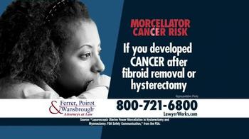 Hysterectomy thumbnail