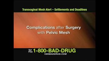 Pulaski & Middleman TV Spot, 'Transvaginal Mesh Alert' - Thumbnail 2