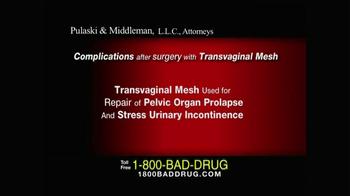 Pulaski & Middleman TV Spot, 'Transvaginal Mesh' - Thumbnail 1