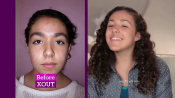 X Out TV Spot, 'No Filter for Zits' - Thumbnail 7