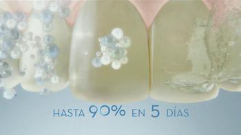 Crest 3D White Luxe TV Spot, 'Manchas en los Dientes' [Spanish] - Thumbnail 7