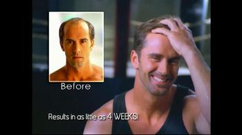 Hair Club TV Spot, 'Free Offer' - Thumbnail 1