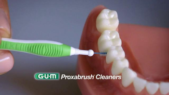 Sunstar GUM TV Spot, 'Your Gums Matter' - Thumbnail 7